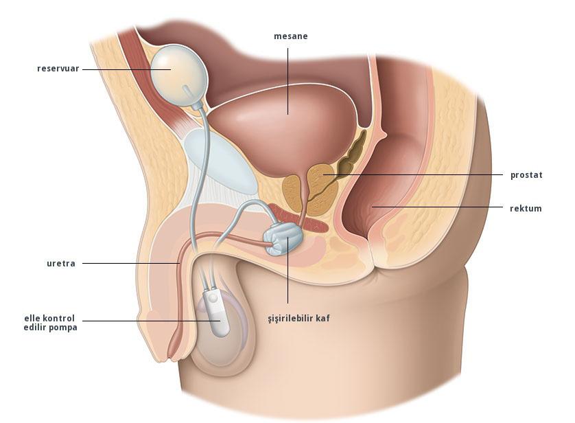 mutluluk çubuğu, penil protez, penis protezi