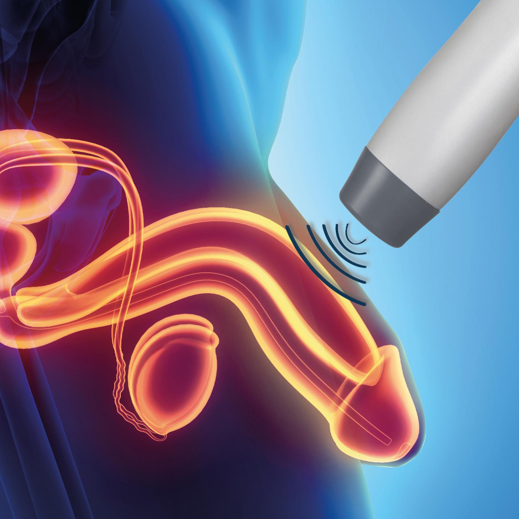 ESWT (Şok Dalga Tedavisi) & Penis PRP Tedavisi - Üroloji Hastalıkları